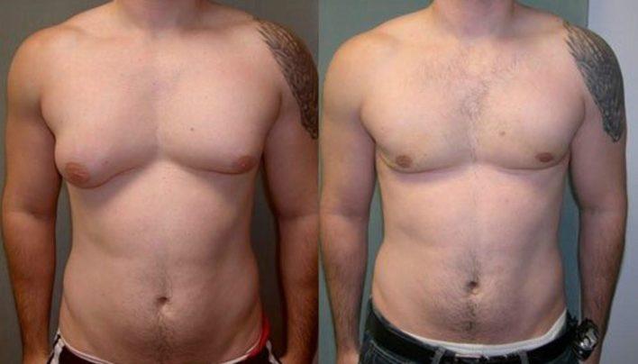 Three Steps To Get Rid of Man Boobs