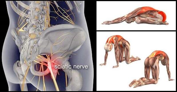 8 Exercises to Relieve Sciatica Pain
